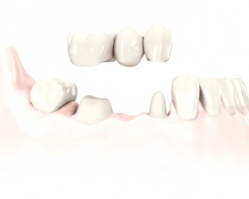3-unit-bridge_on-teeth_tcm261-41492