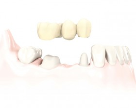 Temp-3-unit-bridge_on-teeth_tcm261-41491